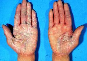 手牛皮癣疾病的主要病发原因?