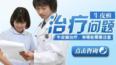 中西医治疗牛皮癣的方法?